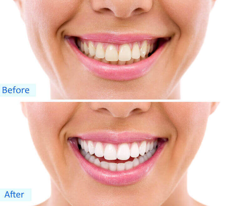 Tooth Whitening Toronto